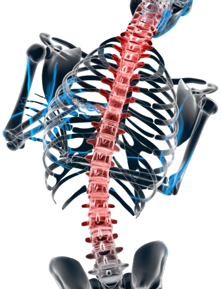 spondylosis scoliosis 3d illustration contains clipping path
